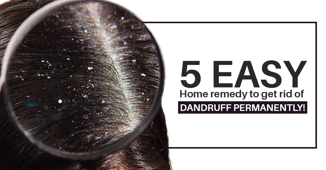 5 Easy Home remedy to get rid of Dandruff permanently!